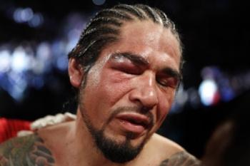 Антонио Маргарито большую часть поединка дрался, по сути, с одним глазом