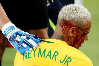 Бразильскому форварду Неймару разбили лицо в матче с Боливией