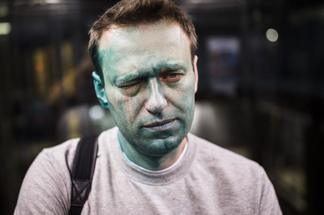 Алексей Навальный после нападения с зеленкой в Москве, 27 апреля 2017 года