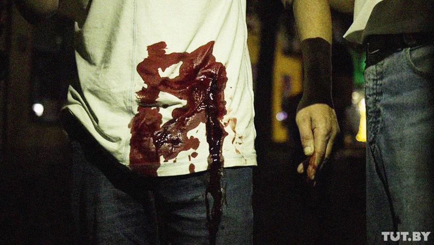 Раненый во время протестов в Бресте, 10 августа 2020 года