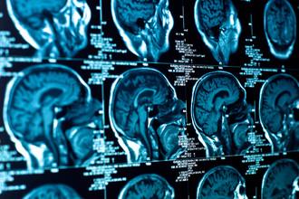 Человеческую речь обеспечивают оба полушария мозга